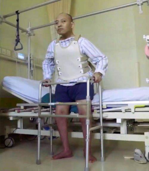 A stat îndoit 28 de ani din cauza bolii. Cum arată bărbatul după ce medicii i-au îndreptat coloana